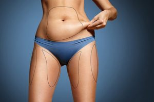 About Liposuction Premier Dermatology And Cosmetic Surgery